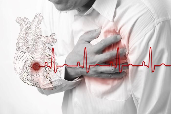 hva gjør man ved hjerteinfarkt